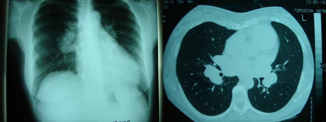 löfgren syndrome sarcoidosis