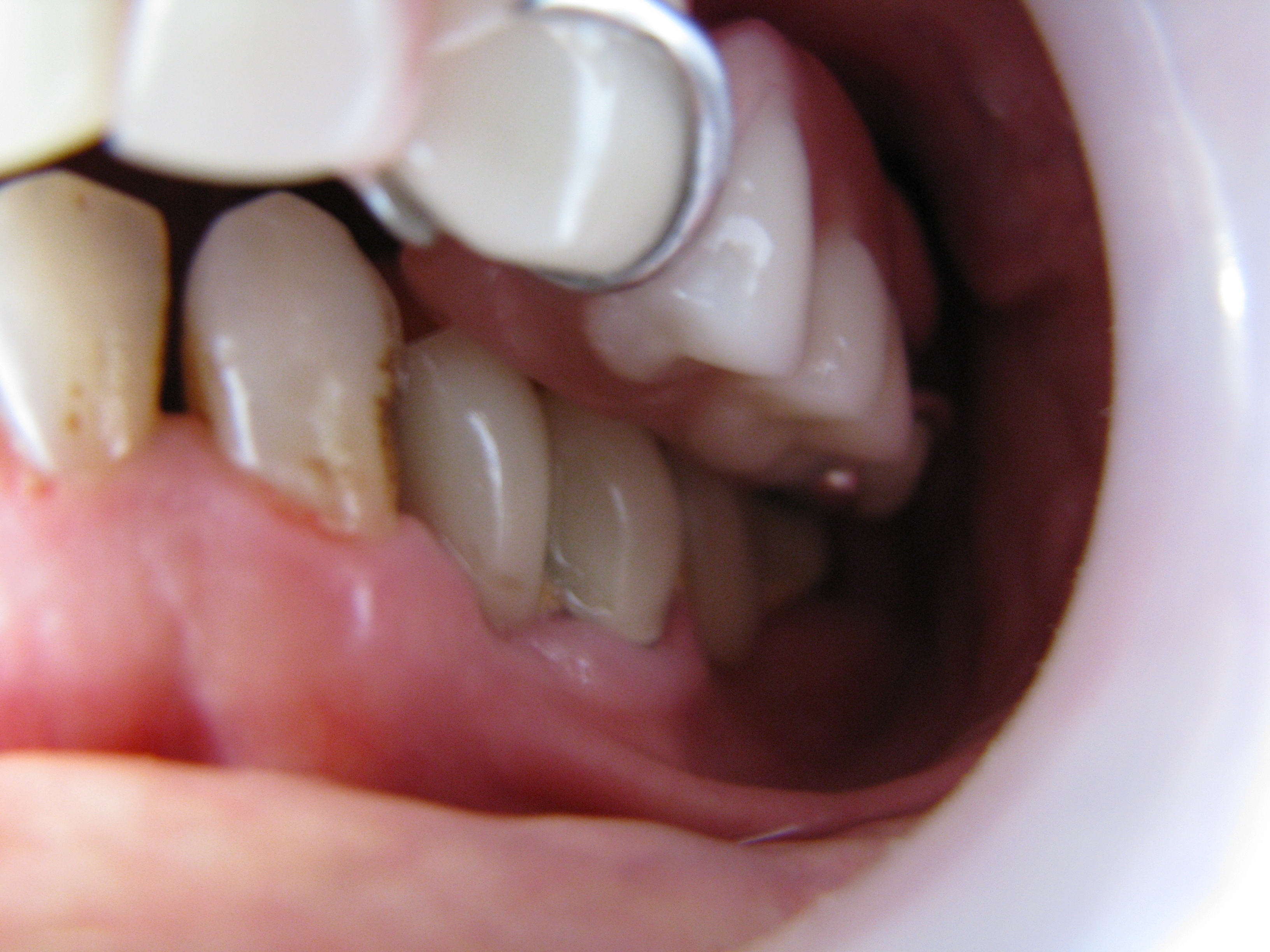 Clasp prosthesis for upper jaw