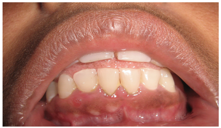 Ibima Publishing Gingival Fibrous Nodules Report Of Four Cases