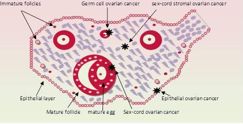 Ibima Publishing Ovarian Cancer Characteristics Management