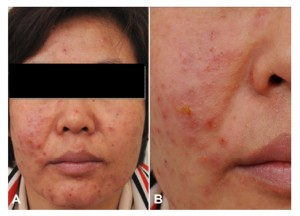 (A and B) Multiple erythematous vesicopustular papules with oozing crusts on the face