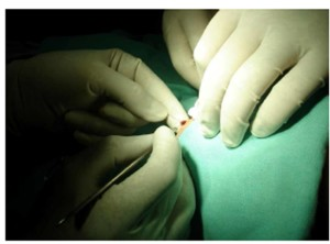 Suture material passing from the middle of lesion.