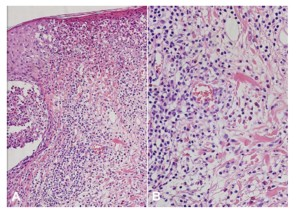 A) Marked infiltration of eosinophils into hair follicles and perifollicular areas with (B) dermal lymphocytic infiltration around the blood vessels(H&E, A: X200, B: X400)